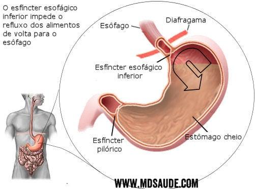 Refluxo gastroesofagico - DRGE
