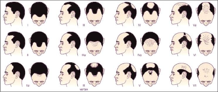 A dieta de que o cabelo não se retirou