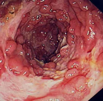 Crohn's disease in colonoscopy
