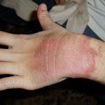 QUEIMADURAS SIMPLES | Tratamento e cuidados básicos