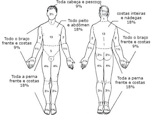extensão da queimadura no corpo