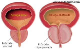 Hiperplasia prostática provocando obstrução da urina