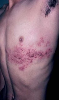 Sintoma de acne que ele