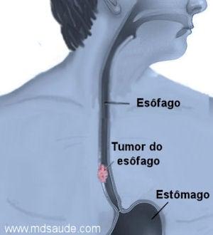 Câncer do esôfago