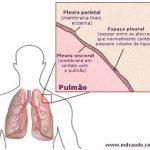 DERRAME PLEURAL | Sintomas e tratamento