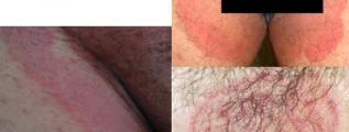 MICOSE NA VIRILHA – Tinea Cruris – Sintomas e Tratamento
