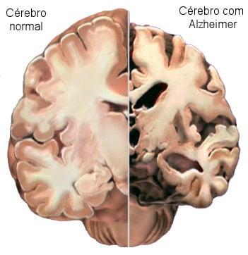 Resultado de imagem para Como prevenir o Mal de Alzheimer