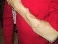 Fístula arteriovenosa de hemodiálise