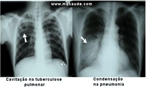 Pneumonia e tuberculose