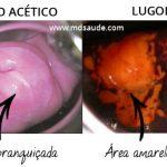 TESTE DE SCHILLER – Rastreio do Câncer de Colo Uterino