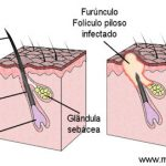 FURÚNCULO – Causas e Tratamento