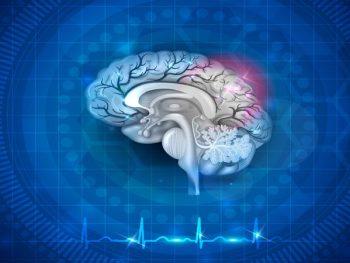 Ataque Isquêmico Transitório (Mini-AVC) – Sintomas e Tratamento