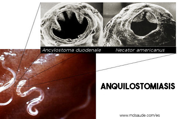 ANQUILOSTOMIASIS
