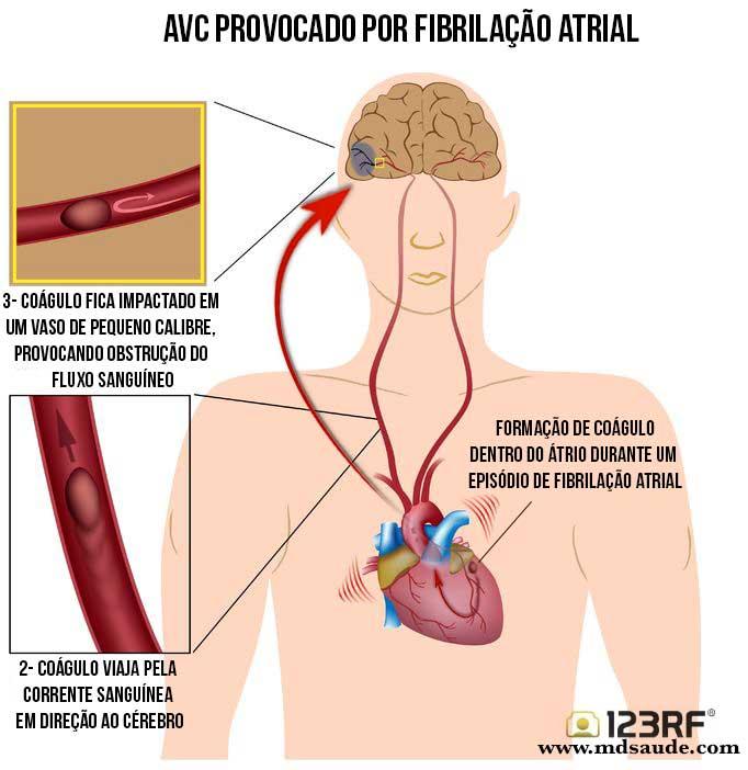 AVC - fibrilação atrial