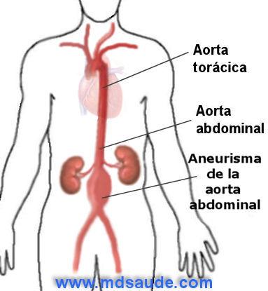 Aneurisma de la aorta