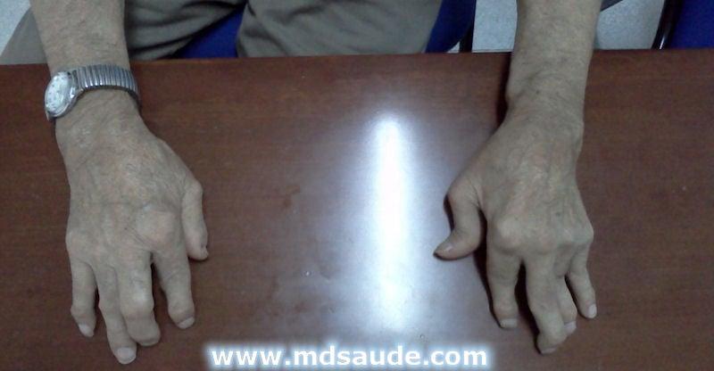 medicina naturista para acido urico vinagre de manzana contra la gota sintomas de acido urico alto en los pies