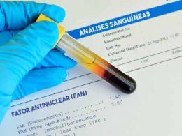 Fator antinuclear (FAN)