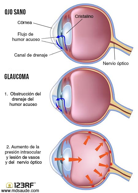 Resultado de imagen para GLAUCOMA