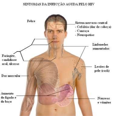 HIV Sintomas