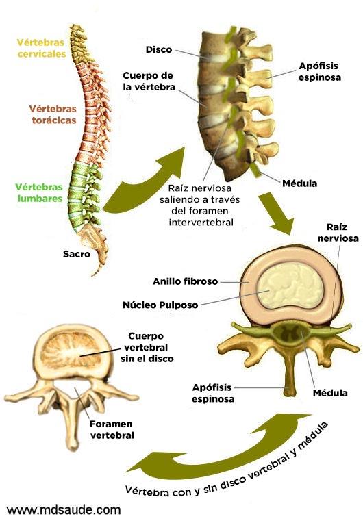 La hernia del disco intervertebral l5-s1 los síntomas