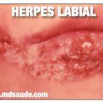 HERPES LABIAL TEM CURA?