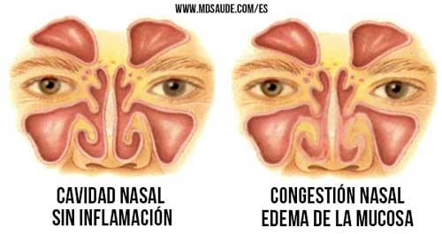 que hacer en caso de congestion nasal en bebes
