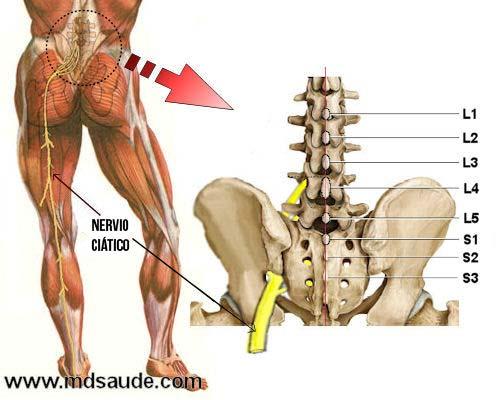 dolor de pierna causado por el nervatura ciatico