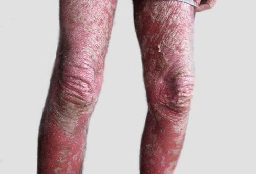 Psoríase eritrodérmica