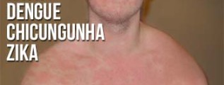 Rash dengue, Chicungunha e Zika