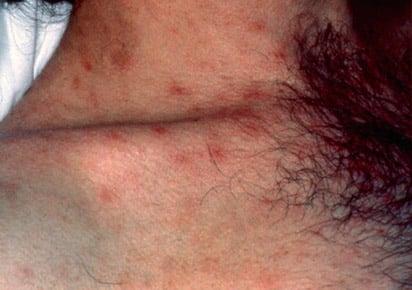 FOTOS: Lesões de Pele Provocadas pelo HIV 2