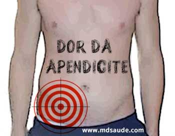 Localização típica da dor da apendicite