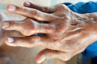 ÁCIDO ÚRICO ALTO – O que causa e quais são os riscos?