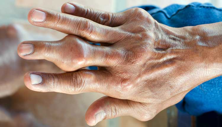 pastillas para bajar acido urico sintomas de acido urico alto en los pies remedios naturales para combatir la gota