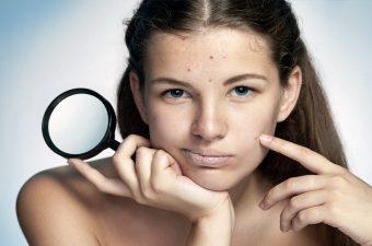 ACNE (cravos  e espinhas) – Causas, graus e tratamento