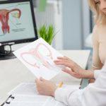 ADENOMIOSIS – Síntomas, Causas y Tratamiento