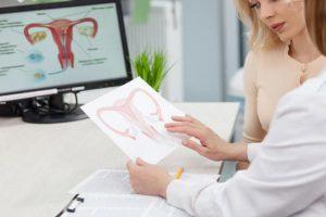 Adenomiose uterina – Sintomas, Causas e Tratamento