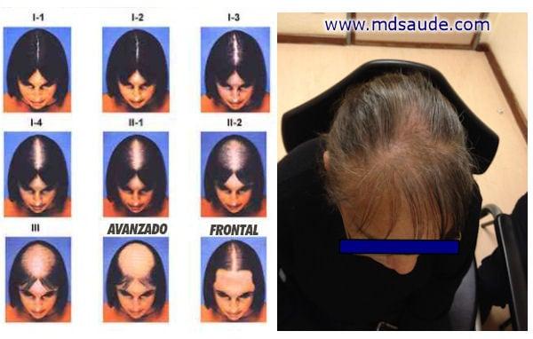 alopecia androgénica en las mujeres