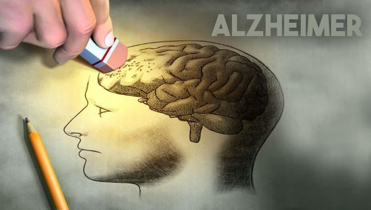 DOENÇA DE ALZHEIMER – Sintomas, Causas e Tratamento