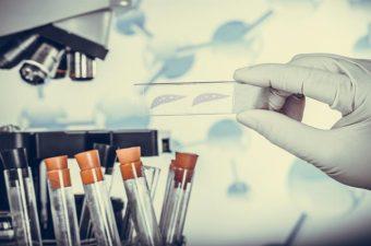 ANEMIA FALCIFORME – Traço, causas, sintomas e tratamento
