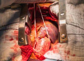aneurisma abdominal