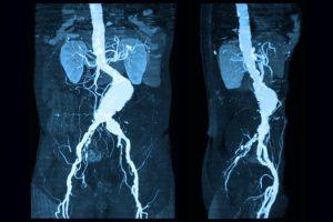 Aneurisma de la aorta abdominal – Causas, síntomas y tratamiento