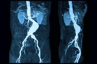 ANEURISMA DA AORTA ABDOMINAL – Causas, sintomas e tratamento