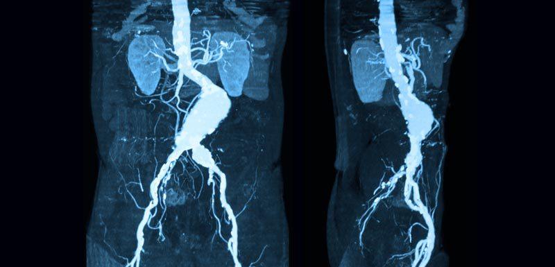 Aneurisma aorta