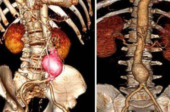 ANEURISMA – O que é, causas, sintomas e tratamento