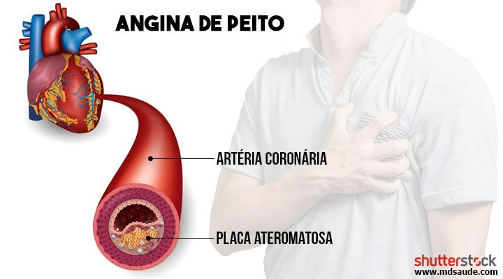 Angina - doença ateromatosa das artérias coronárias