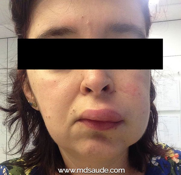 E edema causas facial