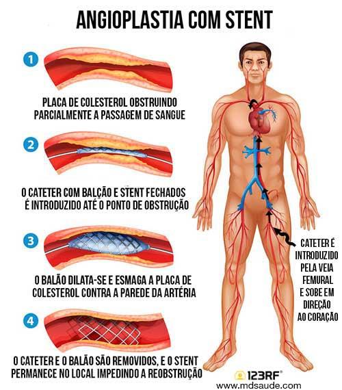 angiolpastia-com-stent