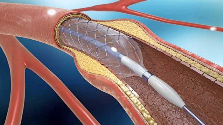Cateterismo Cardíaco y Angioplastia con Stent 1