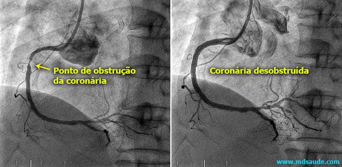 Angioplastia coronária (antes e depois)