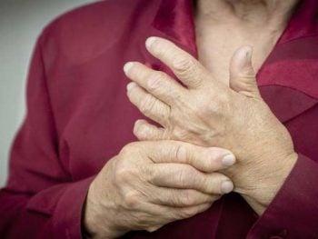 ARTRITIS REUMATOIDE – Síntomas y Tratamiento